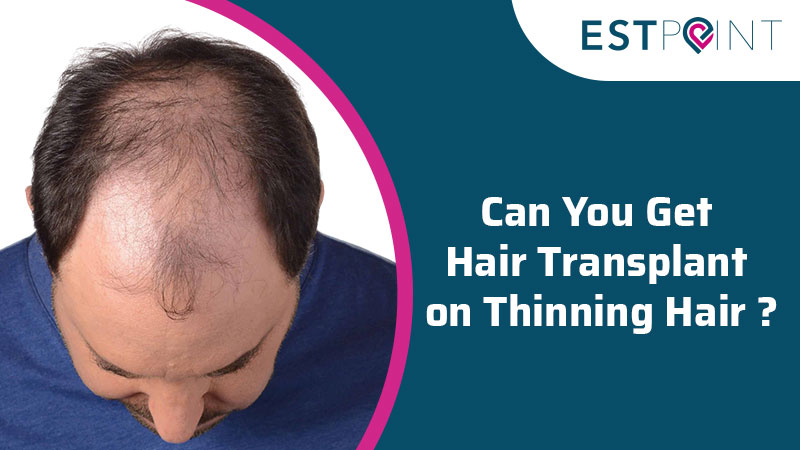 What is Infrequent Hair Transplant?