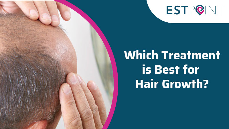 Which Treatment is Best for Hair Growth?