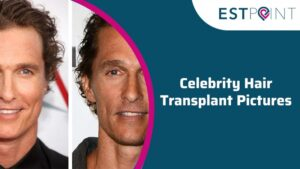 Celebrity Hair Transplant Pictures