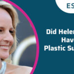 Did Helen Hunt Have Plastic Surgery?