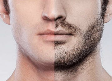 Beard and Moustache Transplantation