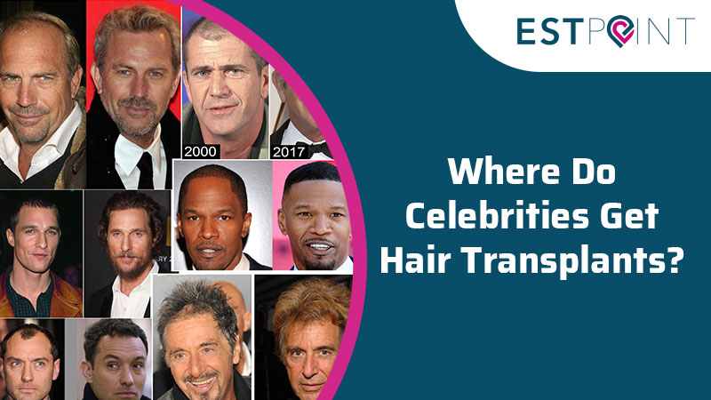 Where Do Celebrities Get Hair Transplants?